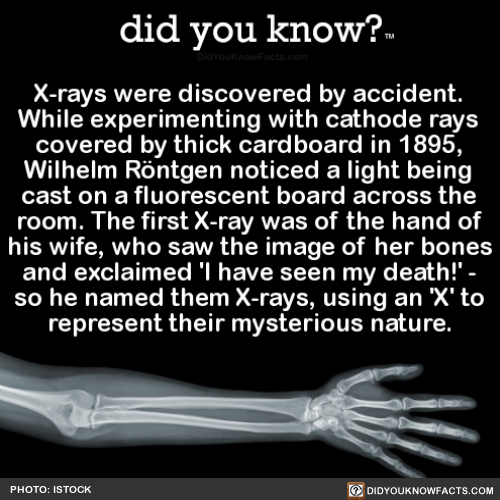 X-rays were found by accident.While try out …